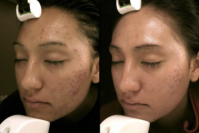 Before & After Laser Genesis