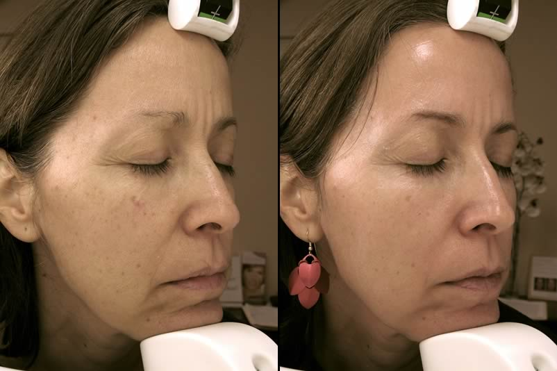 Before & After Obagi Nu Derm and Laser Vein